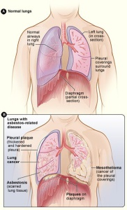 asbestosis diagram